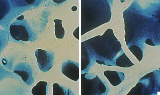 Normal Bone vs. Osteoporotic Bone Histology